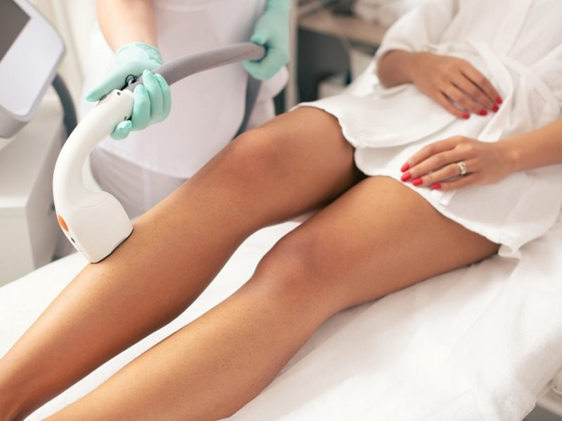 Perks Of Laser Hair Removal